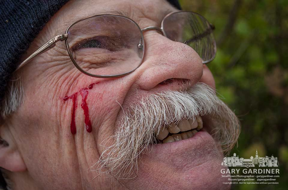 A volunteer bleeds from his cheek after being whacked by an errant branch while clearing honeysuckle from Boyer nature Preserve. My Final Photo for Oct. 26, 2013.