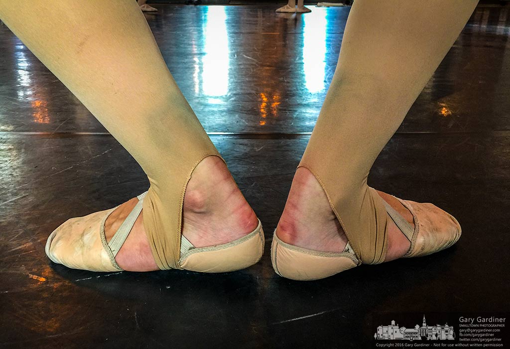 A student dancer's feet are marked with the bruises and abrasions of hours of practice perfecting her dance art. My Final Photo for Sept. 13, 2016.